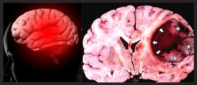 Отличие саркомы от рака головного мозга