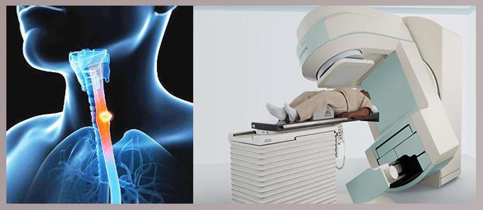 Облучение, радиотерапия